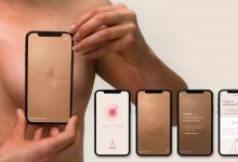 Photo of What Are The Best Breast Cancer Mobile Apps?